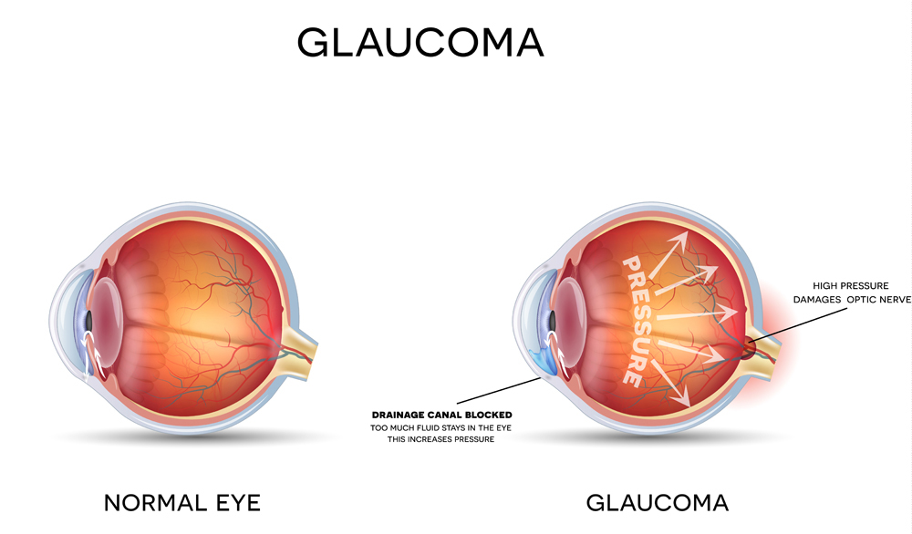 Normal Eye vs. Glaucoma